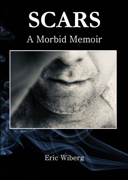 Scars - A Morbid Memoir